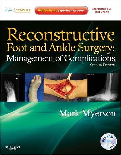 Ilmaiset tietokoneiden online-kirjat ladataan Reconstructive Foot and Ankle Surgery: Management of Complications: Expert Consult in Finnish PDF PDB