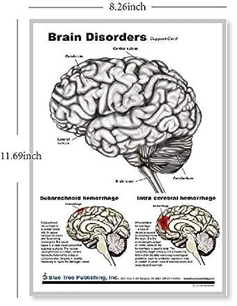 Brain Chart Neurology Industrial & Scientific Charts & Posters ...