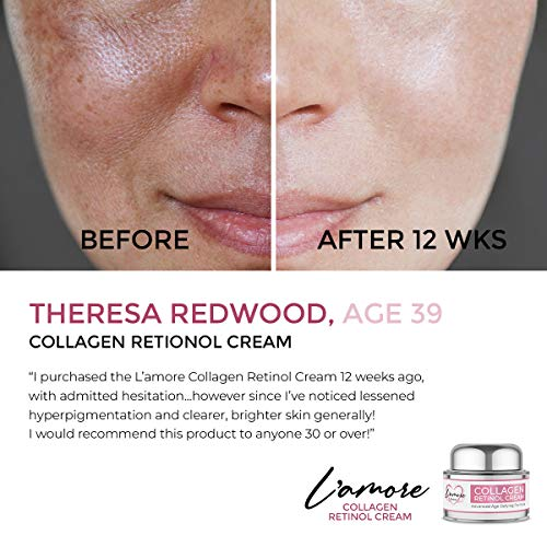 L'amore Beauty Collagen Retinol Cream (30 mL) Anti-Aging Day and Night Facial   Age Defying Skincare Firms and Lifts Wrinkles, Fine Lines   Hydrating Face, Neck, Decollete Moisturizer