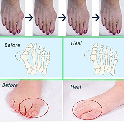 1Pair of Five Toes Bunion Corrector Hallux Valgus Corrector Day Night Toes Correction Feet Care Snail shape by XXJKHL (Image #6)