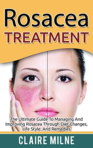 (Rosacea Treatment: The Ultimate Guide To Managing And Improving Rosacea Through Diet Changes, Lifestyle, And Remedies )