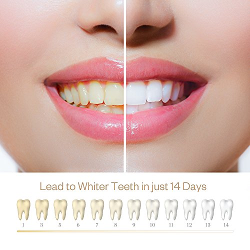 Buy what is the best teeth whitening strips