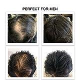 FEBRON Hair Fibers For Thinning Hair DARK BROWN For