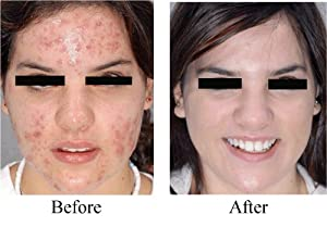 Youthful Glow 60% Glycolic Acid Peel with Free Fan Brush ~ Diminishes Acne, Wrinkles and Freckles
