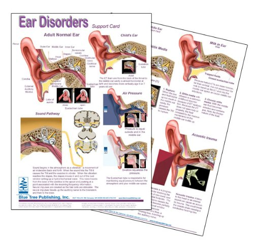 Ear Disorders Anatomical Chart Laminated Card for Audiologist and Hearing Blue Tree Publishing Inc. 4101033