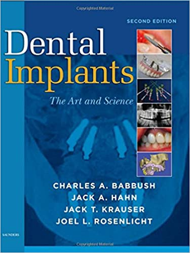 Implants in Clinical Dentistry, Second Edition