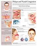 Polyps and Nasal Congestion e-chart: Full illustrated