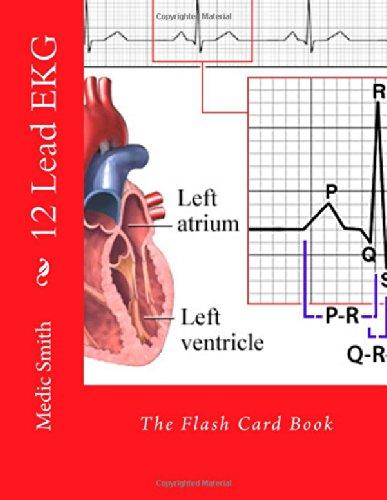 12 Lead EKG Flash Card product image