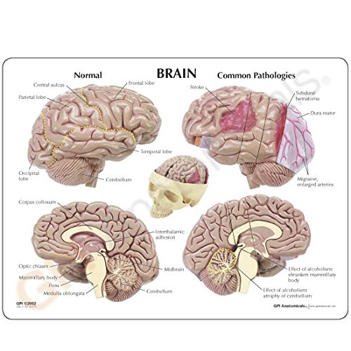 Brain Model Full Size Segmented 4 Parts by GPI Anatomicals (Image #1)