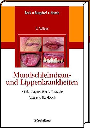 Mundschleimhaut- und Lippenkrankheiten: Klinik, Diagnostik und Therapie Atlas und Handbuch
