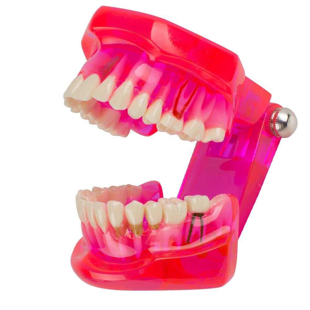 Carejoy Dentaire Teeth Model modèle de Dents Amovibles Transparent Dentaire implant Disease enseignement étude Model