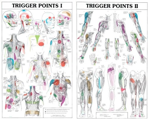 - Trigger Points I and II Laminated Chart/Posters