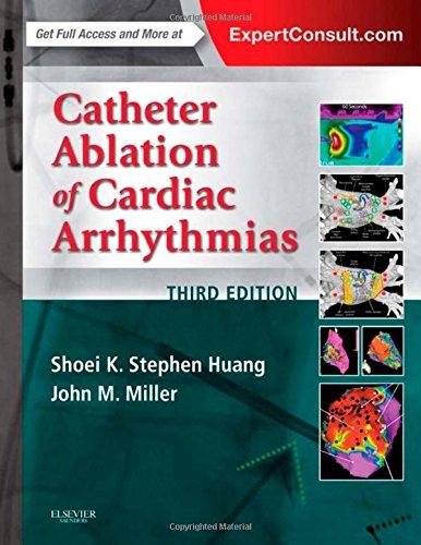 Internal Catheters - 2