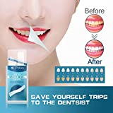 Teeth Whitening Strips with 56 Strips Remove