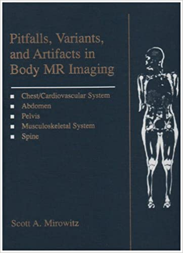 Pitfalls, Variants And Artifacts In Body Mr Imaging, 1e
