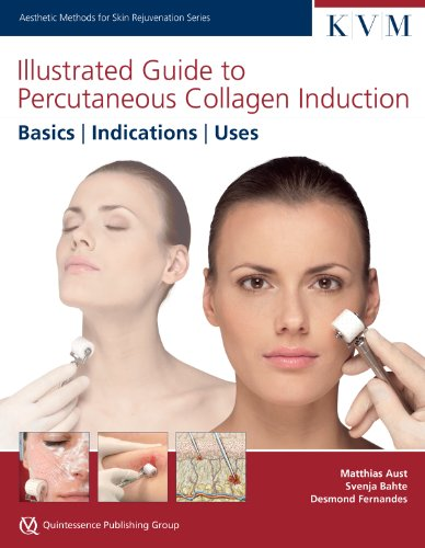Illustrated Guide To Percutaneous Collagen Induction Basics, Indications, Uses (aesthetic Methods For Skin Rejuvenation) [Matthias A] (Tapa Dura)