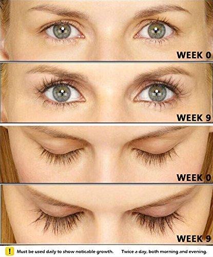 Yeelen Eyelash Eyebrow Growth Serum Grows Longer, Fuller, Thicker Lashes & Brows in 45 days! Enhancer Eyelash Conditioner Non-prescription Eyelash Serum 5ml by Yeelen (Image #5)