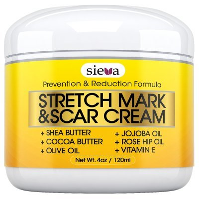 Stretch mark removal cream by Sieva