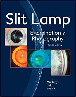 Slit Lamp: Examination And Photography: Csaba L. Martonyi CRA FOPS, Charles  F. Bahn MD, Roger F. Meyer MD: 9780615165196: Amazon.com: Books