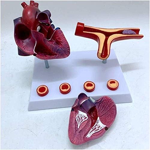 Levensgroot hartanatomiemodel Hartmodel en coronair bypassmodel Verstopping van de hulpslagader en bloedvaten Medciaal lesmodel voor medische standaardonderwijs Leermiddelen