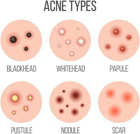 Yoffee - Pro Acne - Tratamiento Nocturno para el Acné con Ácido Salicílico y Carbón Volcánico, Previene y Elimina las Imperfecciones causadas por el Acné✔Libre de Parabenos y Sulfatos✔Vegano✔30ml
