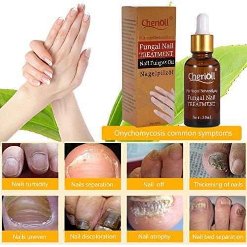Nail Fungus Oil Nail Care,Nail Fungus Treatments,Fungus Stop,Nail Care Treatment of Anti-Fungal Solution,Effective against nail fungus 30ml by Cherioll (Image #6)