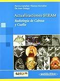Radiologia De Cabeza Y Cuello / Head and Neck Radiology