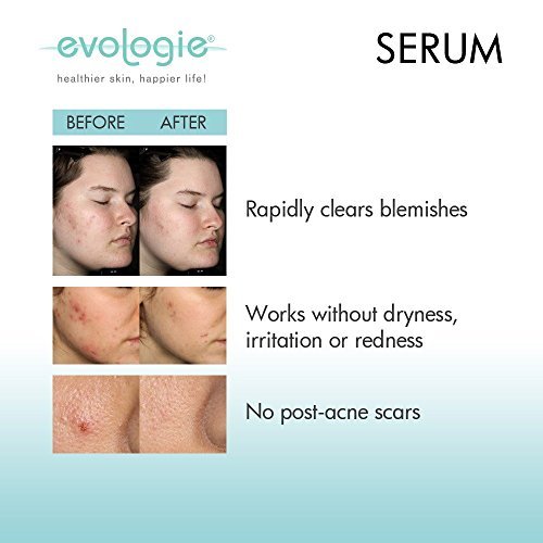 Buy serum for acne scars