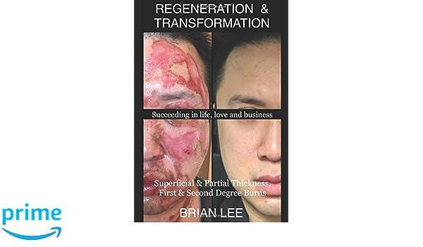 REGENERATION & TRANSFORMATION: Superficial & Partial