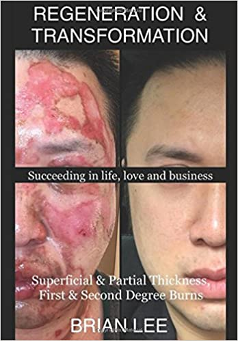 REGENERATION & TRANSFORMATION: Superficial & Partial Thickness