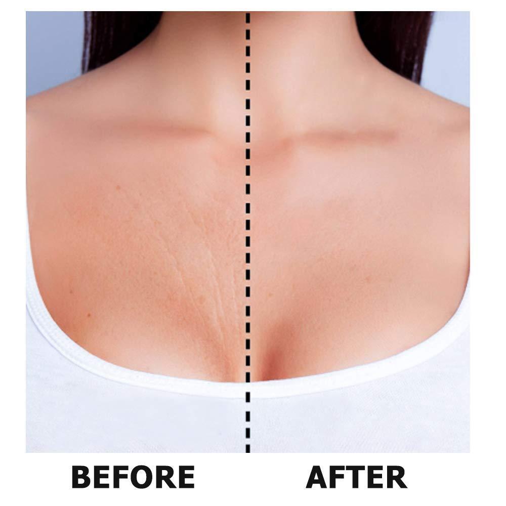 El parche antiarrugas para el escote, MS.DEAR almohadillas antiarrugas hechas de silicona de grado médic para la eliminación y eliminación de arrugas de piel y escote y reduce las líneas finas