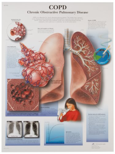 3B Scientific VR1329UU Glossy Paper Copd Chronic Obstructive Pulmonary Disease Anatomical Chart, Poster Size 20