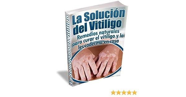 La Solución del Vitiligo: Remedios naturales para curar el vitíligo y la leucoderma en casa (Spanish Edition) - Kindle edition by Miguel Garcia.