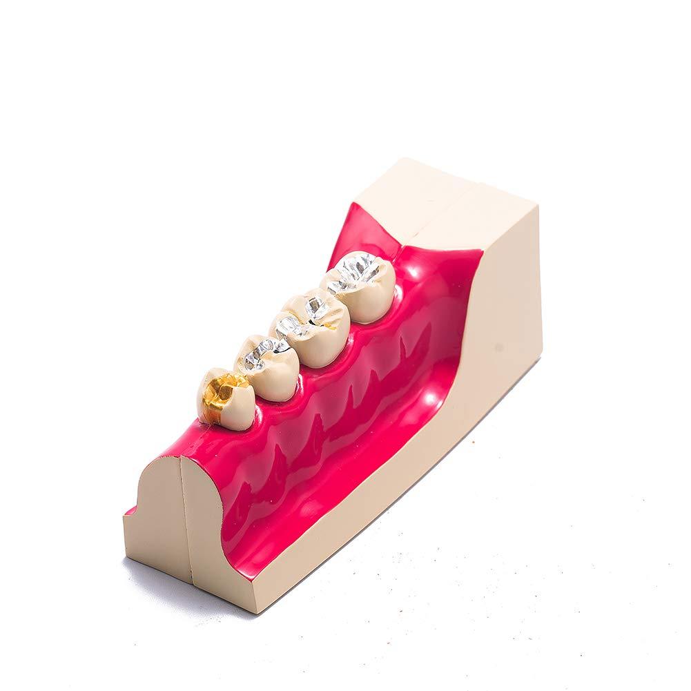 Easyinsmile Dental Molar Cross Section Teeth Model For Study Teach Demonstration