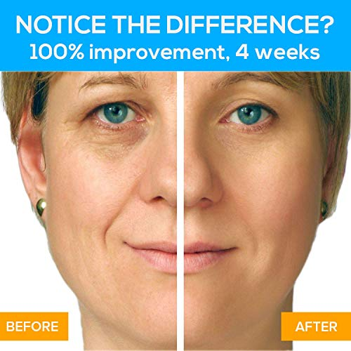 Microcurrent Face Lift Device | 15 Years Proven – Med Spa Grade | In Weeks BEAUTY STAR Face Toner Gently Tightens & Erases Wrinkles, Lines & Aging from Face, Chin & Neck | Gel & Battery by Biosincron by Biosincron (Image #2)