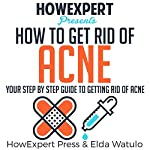 How to Get Rid of Acne: Your Step by Step Guide to Getting Rid of Acne |  HowExpert Press,Elda Watulo