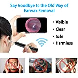 Ear Wax Removal Endoscope Otoscope, Earwax Remover