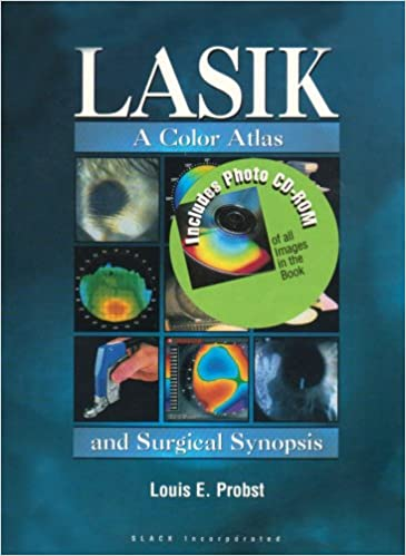 LASIK: A Color Atlas and Surgical Synopsis