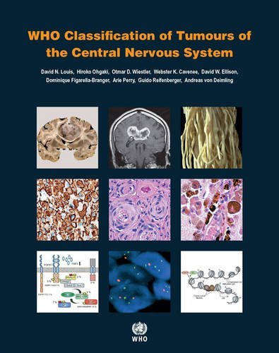 9283244923 - WHO Classification of Tumours of the Central Nervous System (IARC WHO Classification of Tumours)