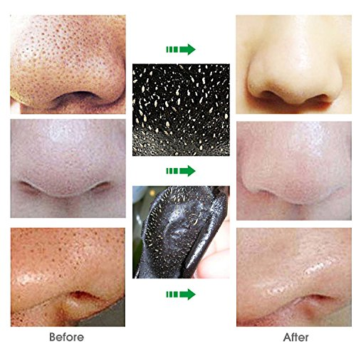 blackhead mask before after