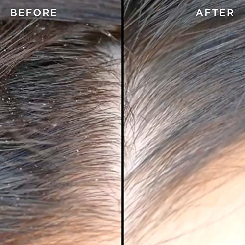 Buy shampoo for dry irritated scalp