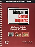 Manual of Dental Implants 9781591950615
