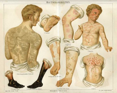 Antique Medical Print-SKIN Diseases-Meyers-1892