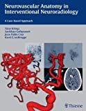 Neurovascular Anatomy in Interventional