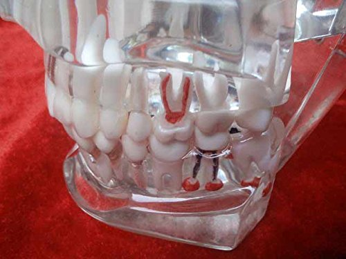 Dentist Pathological Model Removable Tooth Teaching Model