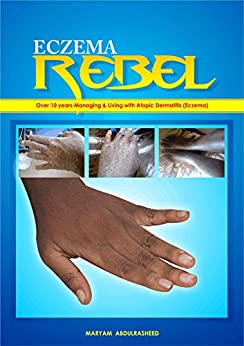 ECZEMA REBEL (English Edition) por [Abdulrasheed, Maryam]