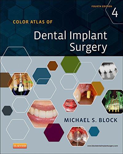 Color Atlas of Dental Implant Surgery Pdf