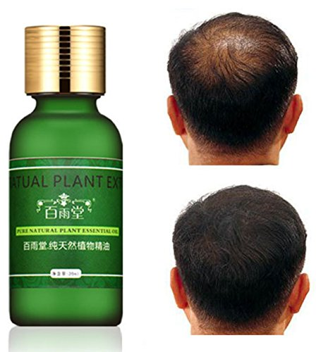 Natural Plant Extract Rapid Hair Growth Essence Essential Oil Liquid Ginseng Ginger Herbal Pure by Superjune