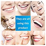 Teeth Whitening Pen, 35% Carbamide Peroxide, 15+ Whitening Treatments, No Sensitivity, 2mL