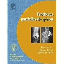 Prothèses partielles du genou: Prothèses unicompartimentaires et fémoropatellaires (French Edition)